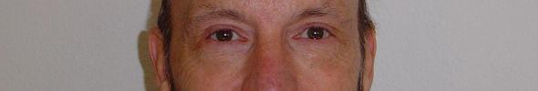 The eyes of Glenn Lewis Gillette